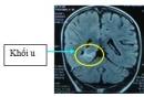 Bệnh nhân u não 9 tuổi được điều trị thành công tại Trung tâm y học hạt nhân và ung bướu Bệnh viện Bạch Mai