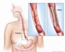Ung thư thực quản ( Phần 1)