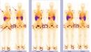 Nhận hai trường hợp ung thư chẩn đoán khó và điều trị có kết quả