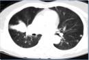 Điều trị ung thư phổi giai đoạn di căn xa