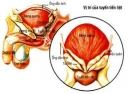 3 chứng bệnh thường gặp ở tuyến tiền liệt