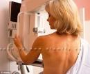 Khám lâm sàng tuyến vú