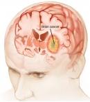 Phân loại u não của tổ chức Y tế thế giới