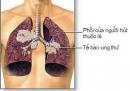 90% ca ung thư phổi có nguyên nhân từ hút thuốc lá