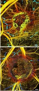 Khám phá hoạt động của ung thư qua ảnh quang mới
