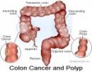 Ung thư đại tràng (Phần 1)
