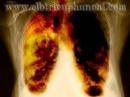 Giá trị của PET/CT trong chẩn đoán ung thư phổi không tế bào nhỏ (phần II)