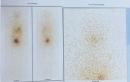 Giá trị của PET/CT trong phát hiện tái phát di căn ung thư tuyến giáp thể biệt hóa sau điều trị I-131
