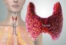 Đau tai, khàn giọng coi chừng ung thư tuyến giáp