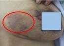Trường hợp lâm sàng Lao tuyến vú, một thể lao ở vị trí hiếm gặp, được chẩn đoán tại bệnh viện Bạch Mai