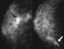 Đặc điểm hình ảnh của ung thư biểu mô tuyến vú thể ống tuyến không xâm nhập (DCIS- Ductal Carcinoma in Situ)
