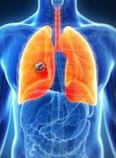 Điều trị ung thư phổi không tế bào nhỏ giai đoạn tiến triển tại bệnh viện Bạch Mai