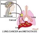 Điều trị ung thư phổi di căn não bằng dao Gamma Quay kết hợp với hóa trị liệu