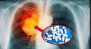 Hiệu quả của thuốc điều trị đích trên bệnh nhân ung thư phổi không tế bào nhỏ giai đoạn muộn có đột biến GEN EGFR