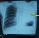 Ca lâm sàng điều trị thành công bệnh nhân ung thư phổi không tế bào nhỏ bằng hóa chất toàn thân