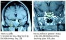 Xạ phẫu bằng dao gamma quay cho u tuyến yên tại Trung tâm Y Học Hạt Nhân và Ung bướu Bệnh viện Bạch mai