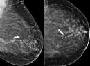 Sinh thiết tổn thương tuyến vú dưới hướng dẫn X.quang