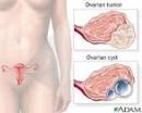 Ung thư buồng trứng (phần 1)