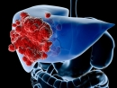 Ung thư gan tái phát