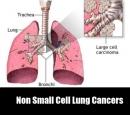 Các thuốc ức chế Tyrosine Kinase trong ung thư phổi không tế bào nhỏ: Chỉ định hiện tại và triển vọng trong tương lai!