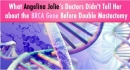 Ung thư vú có đột biến BQCA, phẫu thuật thời điểm nào là tốt nhất