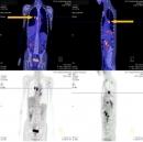 Ca lâm sàng điều trị đích bằng thuốc đường uống ở bệnh nhân ung thư phổi không tế bào nhỏ có thể trạng gày yếu