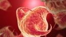 Tỷ lệ sống thêm của bệnh nhân ung thư dạ dày