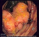 Ung thư đại tràng qua nội soi (Nguồn: Internet)