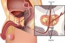 5 dạng ung thư dễ mắc khi về già