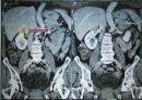 Điều trị bệnh nhân ung thư đại tràng di căn phúc mạc, tuyến thượng thận tại Trung tâm Y học hạt nhân & Ung bướu, bệnh viện Bạch Mai
