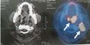 Điều trị U lymphô ác tính không Hodgkin (Non Hodgkin Lymohoma) tại Trung tâm Y học hạt nhân và Ung bướu