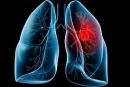 Vì sao ung thư phổi là 1 trong 3 dạng ung thư đáng sợ nhất?