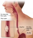 6 dấu hiệu nhận biết ung thư thực quản