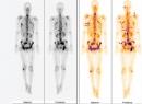 Ca lâm sàng: ung thư di căn xương