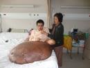 Phẫu thuật cho bệnh nhân có khối U 90 kg