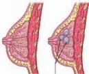 7 hiểu biết chưa đúng về khối u tuyến vú