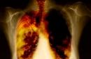 Bệnh ung thư phổi