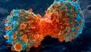 Điểm yếu của tế bào ung thư đã bị nhận diện