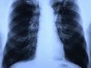 Vũ khí ngầm chống ung thư phổi ác tính