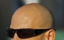 Hói đầu và ung thư tuyến tiền liệt