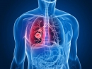 """Công cụ """"LUNG - RADS"""" trong tầm soát và phát hiện sớm ung thư phổi"""