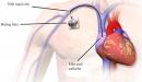 Lợi ích trong sử dụng buồng tiêm truyền trong điều trị