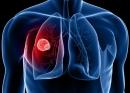 Những dấu hiệu không ngờ của bệnh ung thư phổi