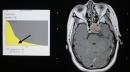 Chỉ định và quy trình xạ phẫu u tuyến yên bằng dao gamma quay