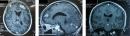Ca lâm sàng: Bệnh nhân ung thư phổi di căn não được điều trị bằng hóa chất, xạ trị kết hợp điều trị miễn dịch
