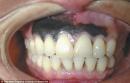 Kỳ lạ ung thư da hắc tố ở miệng