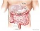 Gen gây ung thư phổi cũng gây ra ung thư đại tràng