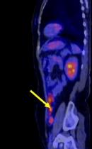 Chẩn đoán ung thư buồng trứng bằng kỹ thuật FDG PET/CT