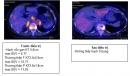 Điều trị ung thư phổi không tế bào nhỏ giai đoạn tiến triển bằng thuốc điều trị đích tại bệnh viện Bạch Mai