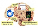 Thuốc Donepezil giúp một số bệnh nhân điều trị tia xạ vào não